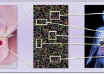 Nieuwe technologie kan diagnose alzheimer vereenvoudigen 1
