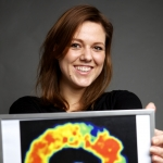 Promotie - Eiwitstapeling in het brein in beeld