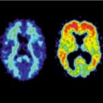 Alzheimermiddel solanezumab blijkt niet effectief